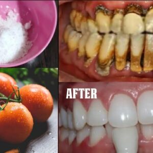 Teeth whitening at home in 3 minutes || How to naturally whiten your yellow teeth || 100% effective
