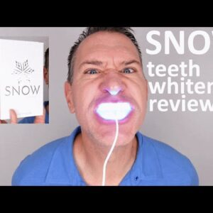 SNOW Teeth Whitening Review & Unboxing 2020 - Does Snow really work?