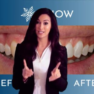 Snow Teeth Whitening - Snow Teeth Whitening Reviews