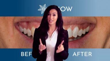 Snow Teeth Whitening - Snow Teeth Whitening Reviews