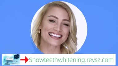 Snow Teeth Whitening System - Snow Teeth Whitening Before And After